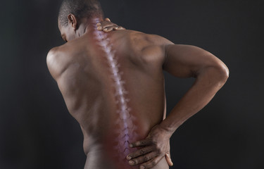 African American with spine showing on back