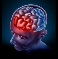 Migrain headache