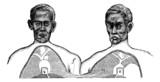 Siamese twins. V. Vena cava. f. Upper limit of the common axis, poster