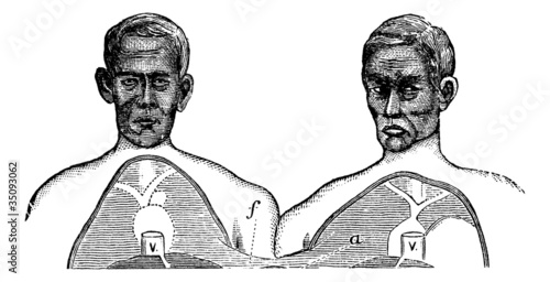 Siamese twins. V. Vena cava. f. Upper limit of the common axis,