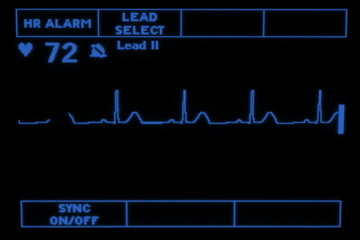 Heart Monitor EKG Screen
