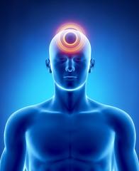 Migraine and headache concept