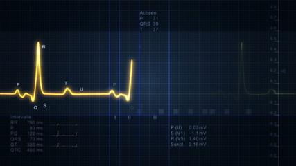 Electrocardiogram - pulse trace