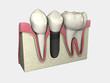 Implante 3D Colocado 01