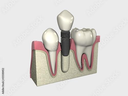 Implante 3D Colocado 03