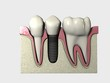 Implante 3D Colocado 04