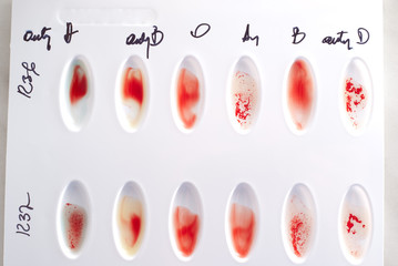 Blood type test