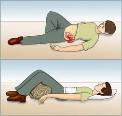 Bauchverletzung.Verband anlegen
