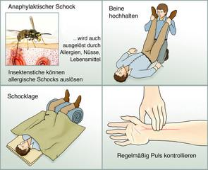 Anaphylaktischer Schock.Erste Hilfe