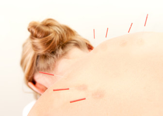 Acupuncture Patient Treatment in Back