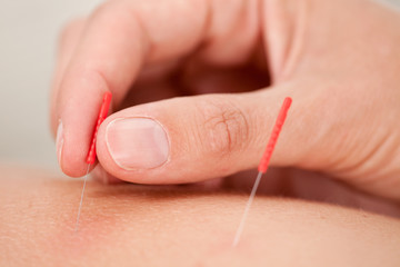 Acupuncture Macro