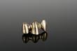 Zahntechnik, Goldgerüst auf schwarzem Acryl