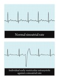 Electrocardiogram. Normal and pathological. Detailed vector. poster