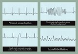 Examples of normal and abnormal ECG. Vector. poster