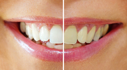 Bleaching Effect - befor & after