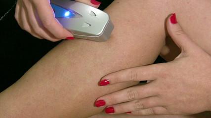 Laser epilation