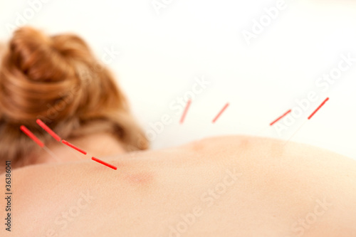 Acupuncture on Back Shu Points