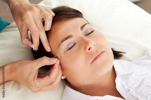 Acupuncture Therapist Placing Needle in Face