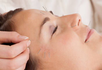 Facial Acupuncture Treatment Detail