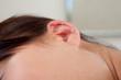 Ear Needling Detail
