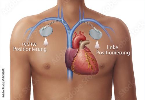 Herzschrittmacher linke und rechte Positionierung