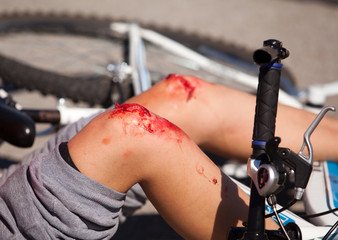 bike fall injuries