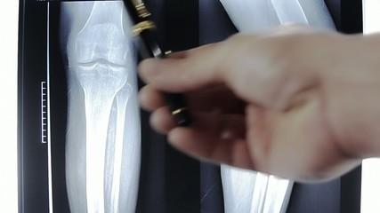 radiografia degli arti inferiori