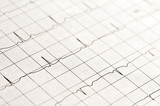 Electrocardiogramme normal poster