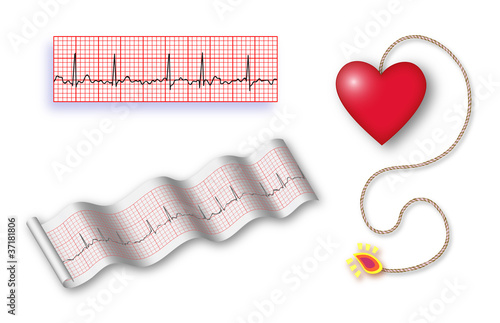 Cardiac time bomb with 2 EKG strips