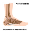 Plantar fasciitis, foot problem, eps8