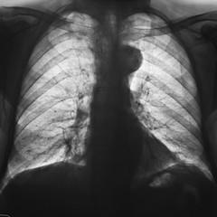 radiografia del torace negativa