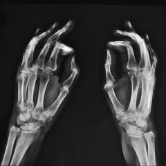 radiografia delle mani