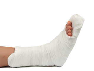 leg in a plaster cast