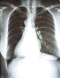X-ray film of chest poster