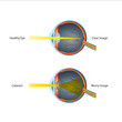 Human Eye Cataract Illustration