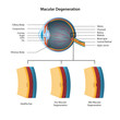 macula degeneration vector illustration