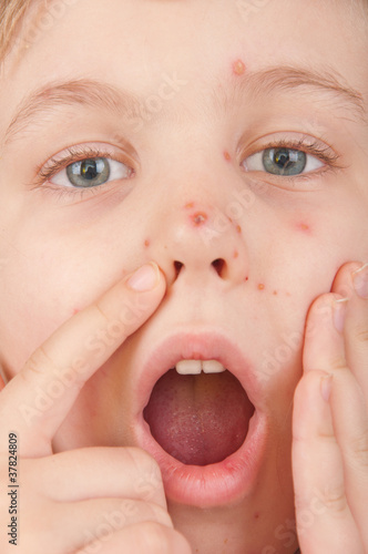 A girl suffering from varicella