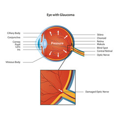 eye with glaucoma eps10 vector illustration