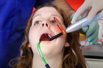 Dental procedure,  UV curing light in hand