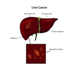 liver cancer vector illustration