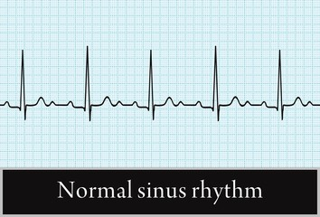 normal sinus rhythm. the vector. Information for professional