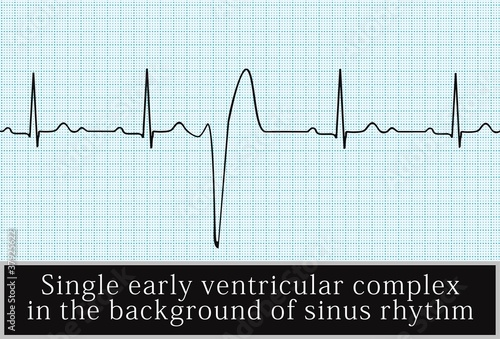 single ventricular beat. vector. Information for Professionals