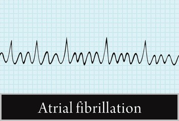 atrial fibrillation. vector. Information for Professionals
