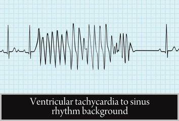 paroxysm of ventricular tachycardia. vector.