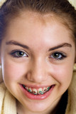 Fototapety Teenaged girl with mouth full of braces