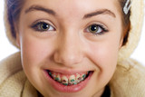 Fototapety Happy Teenager with Braces