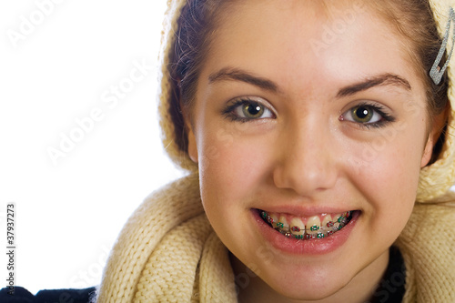 Teenager girl with braces