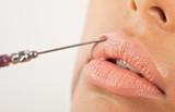 Lip Enhancement Treatment poster