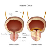 prostate and bladder medical vector illustration