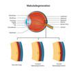 makuladegeneration vektor illustration deutsch mit beschreibung